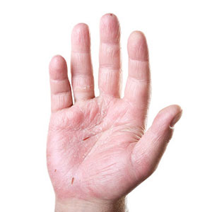Patient with Allergic Contact Dermatitis on his palms