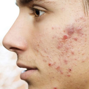 Acne Treatments in Phoenix