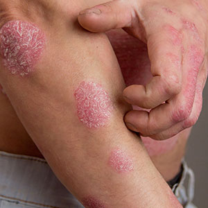 Man with psoriasis on hands and arms before being treated at Saguaro Dermatology - Phoenix Dermatologist