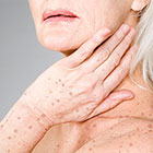 Sun Spots on elderly woman's hands and chest