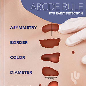 ABCDE rule for early detection