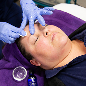 Medical Assistant at Saguaro Dermatology applying Chemical Peels