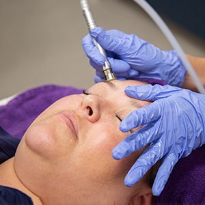 patient at Saguaro Dermatology with Microdermabrasion