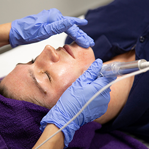 patient at Saguaro Dermatology with Microneedling